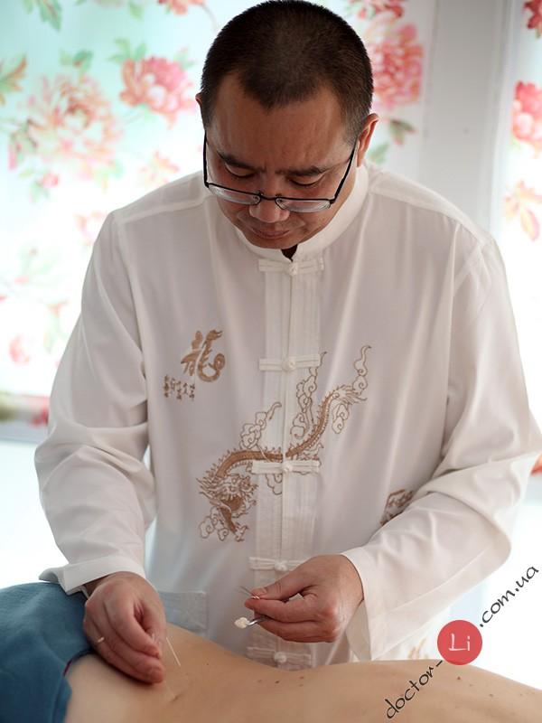 Доктор Ли и иглоукалывание